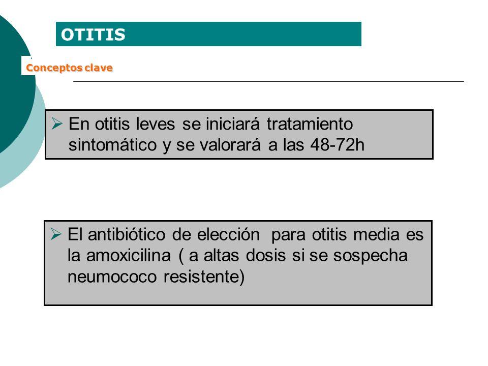 OTITIS Conceptos clave. En otitis leves se iniciará tratamiento sintomático y se valorará a las 48-72h.