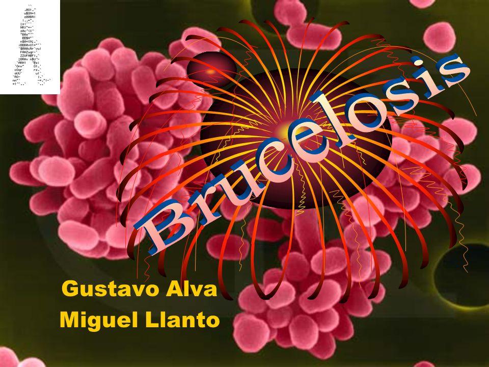 Gustavo Alva Miguel Llanto