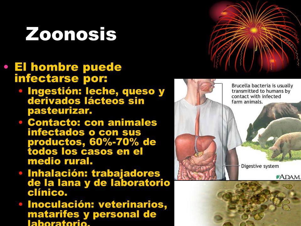 Zoonosis El hombre puede infectarse por: