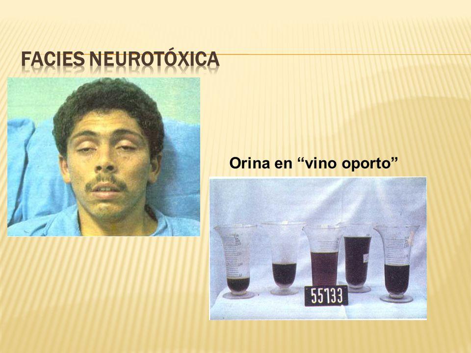Facies Neurotóxica Orina en vino oporto