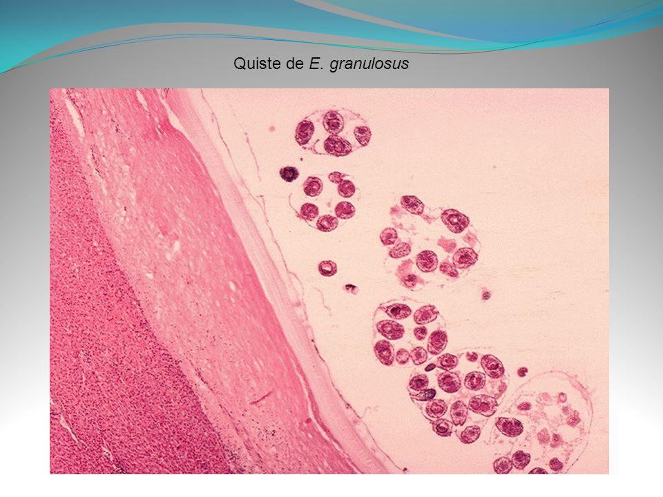 Quiste de E. granulosus