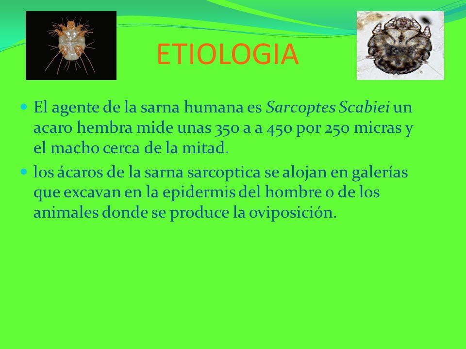 ETIOLOGIAEl agente de la sarna humana es Sarcoptes Scabiei un acaro hembra mide unas 350 a a 450 por 250 micras y el macho cerca de la mitad.