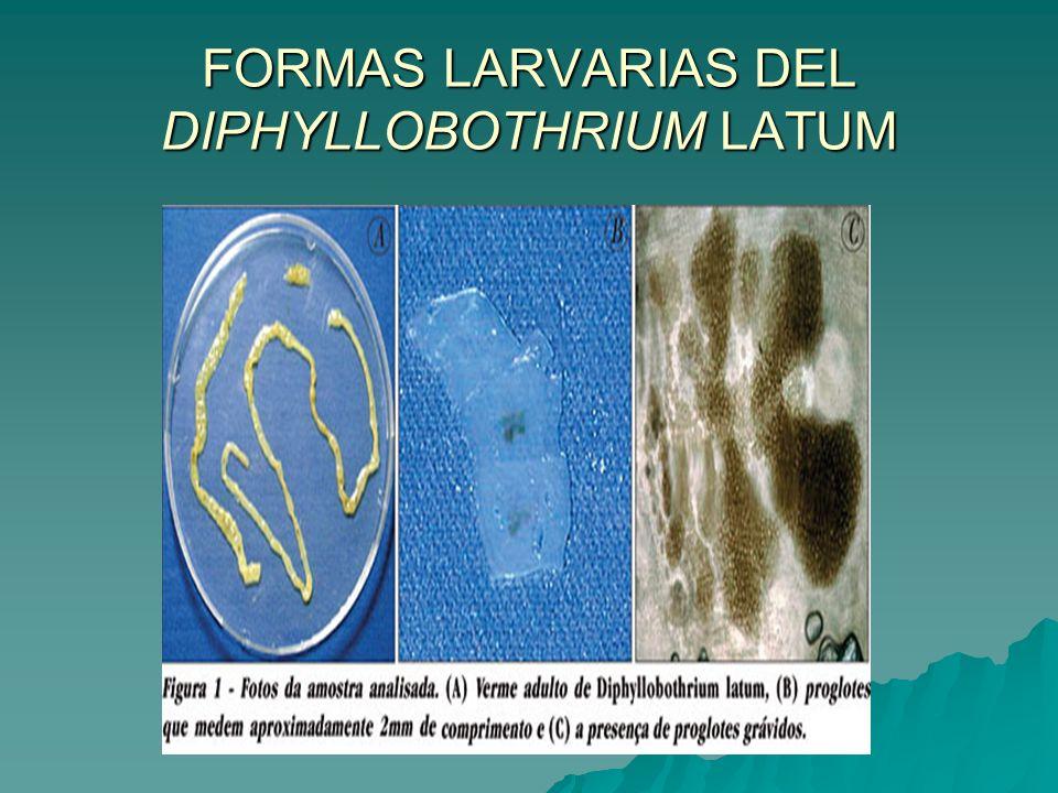 FORMAS LARVARIAS DEL DIPHYLLOBOTHRIUM LATUM