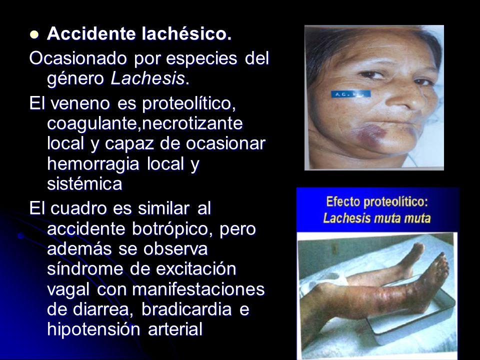 Accidente lachésico. Ocasionado por especies del género Lachesis.