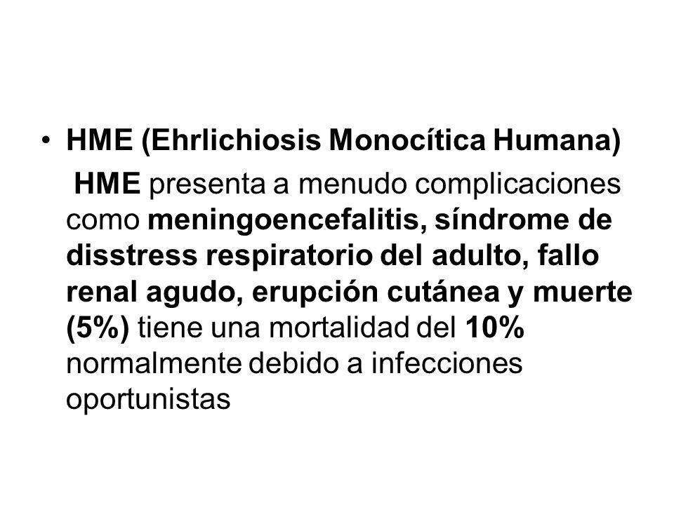 HME (Ehrlichiosis Monocítica Humana)