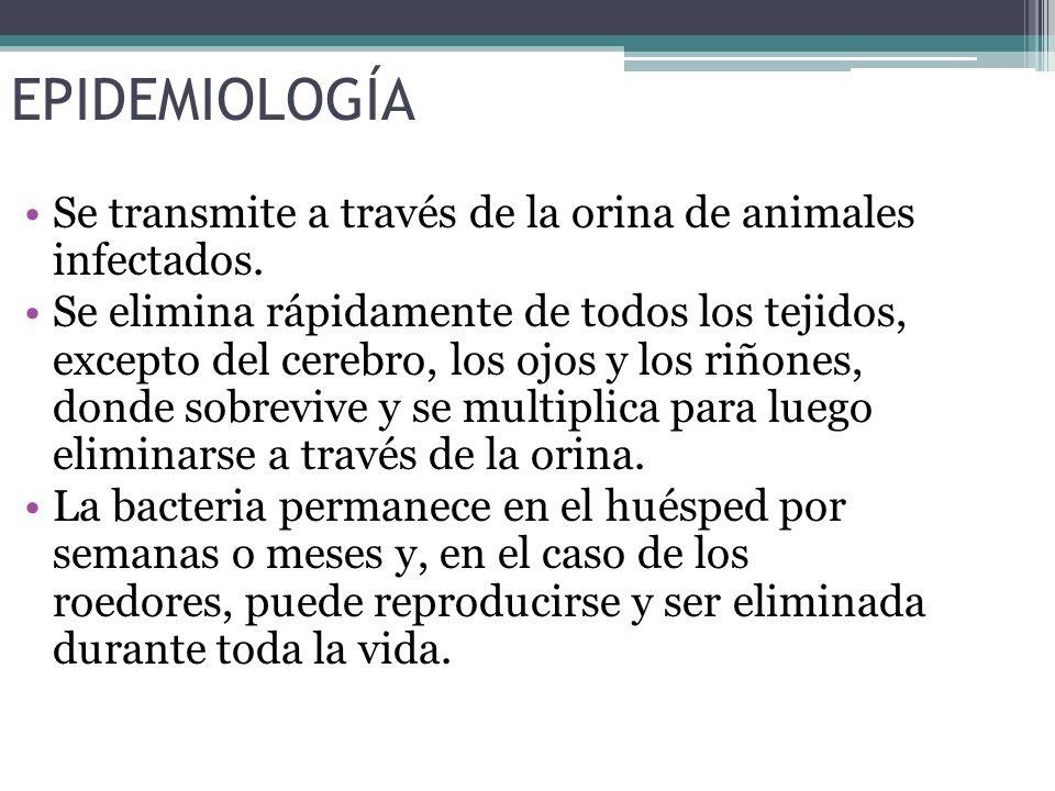 EPIDEMIOLOGÍA Se transmite a través de la orina de animales infectados.