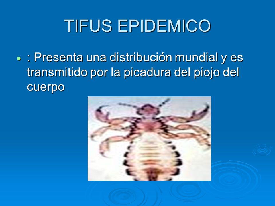 TIFUS EPIDEMICO : Presenta una distribución mundial y es transmitido por la picadura del piojo del cuerpo.