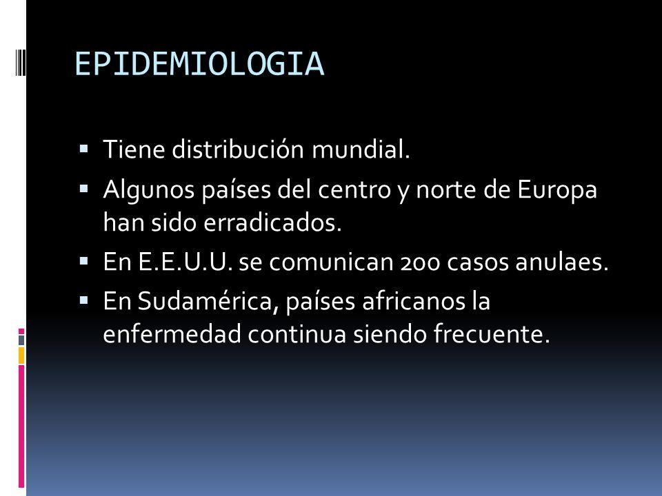 EPIDEMIOLOGIA Tiene distribución mundial.