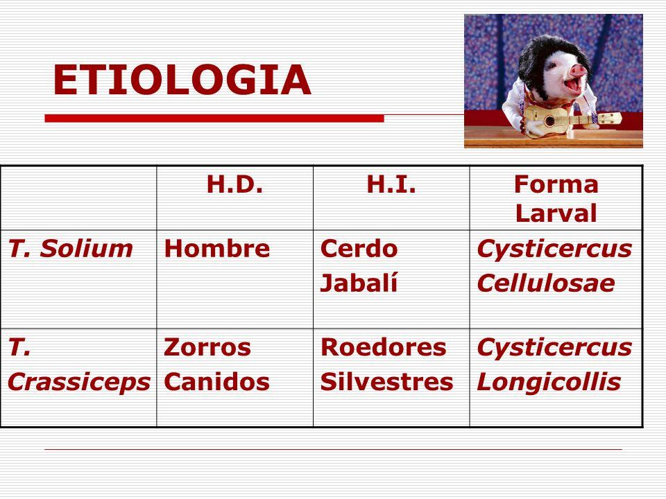 ETIOLOGIA H.D. H.I. Forma Larval T. Solium Hombre Cerdo Jabalí