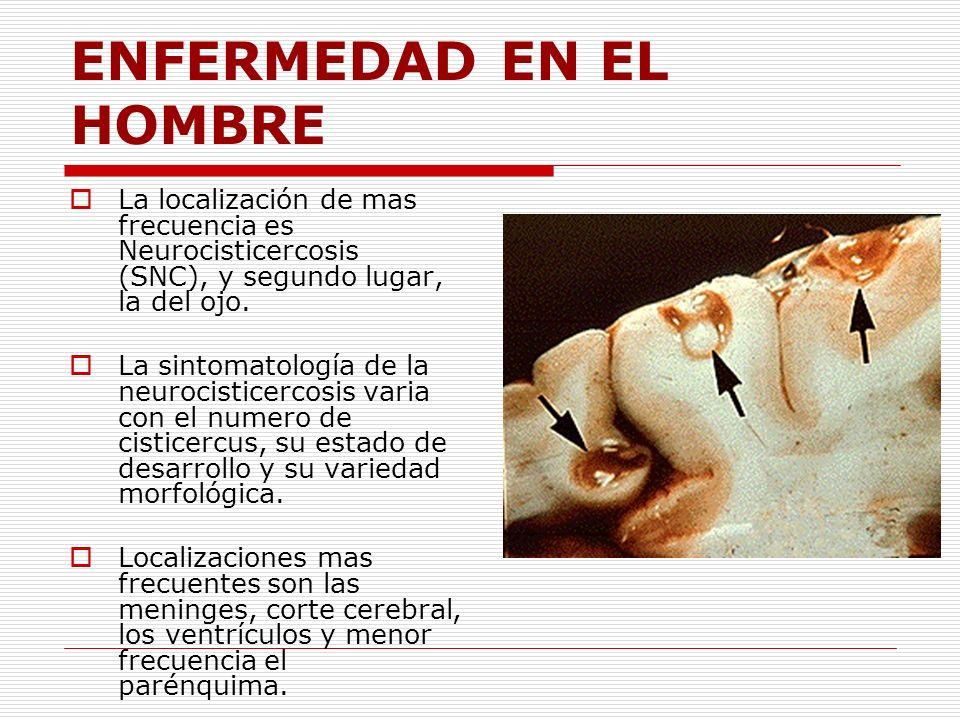 ENFERMEDAD EN EL HOMBRE