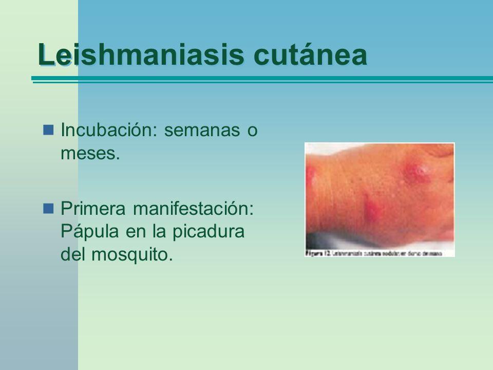 Leishmaniasis cutánea