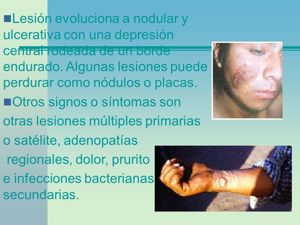 Lesión evoluciona a nodular y ulcerativa con una depresión central rodeada de un borde endurado. Algunas lesiones puede perdurar como nódulos o placas.