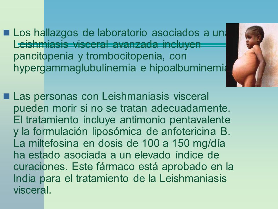 Los hallazgos de laboratorio asociados a una Leishmiasis visceral avanzada incluyen pancitopenia y trombocitopenia, con hypergammaglubulinemia e hipoalbuminemia.