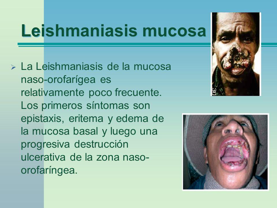 Leishmaniasis mucosa