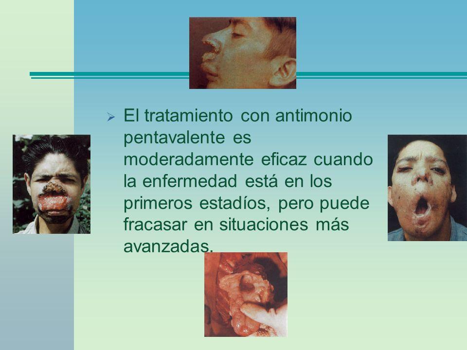 El tratamiento con antimonio pentavalente es moderadamente eficaz cuando la enfermedad está en los primeros estadíos, pero puede fracasar en situaciones más avanzadas.