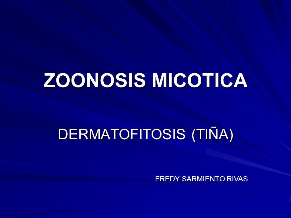 DERMATOFITOSIS (TIÑA)