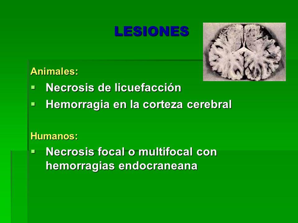LESIONES Necrosis de licuefacción Hemorragia en la corteza cerebral