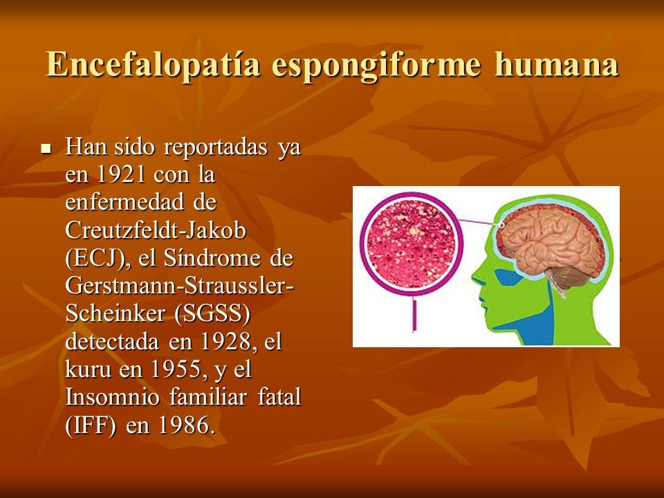 Encefalopatía espongiforme humana