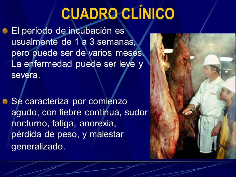 CUADRO CLÍNICO El período de incubación es usualmente de 1 a 3 semanas, pero puede ser de varios meses. La enfermedad puede ser leve y severa.