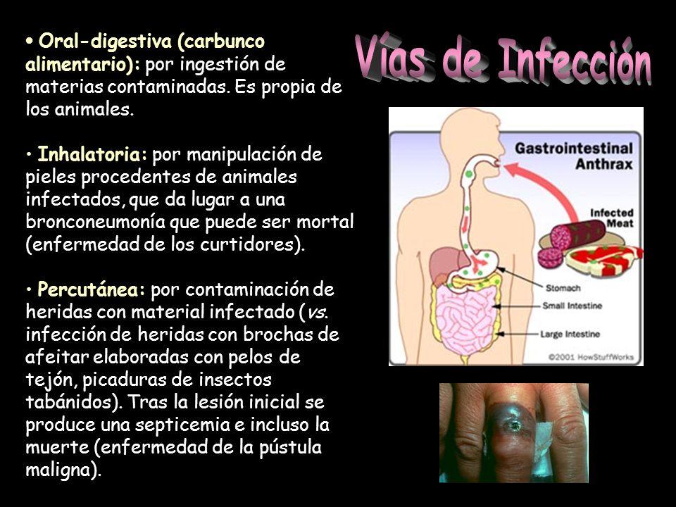 Oral-digestiva (carbunco alimentario): por ingestión de materias contaminadas. Es propia de los animales.