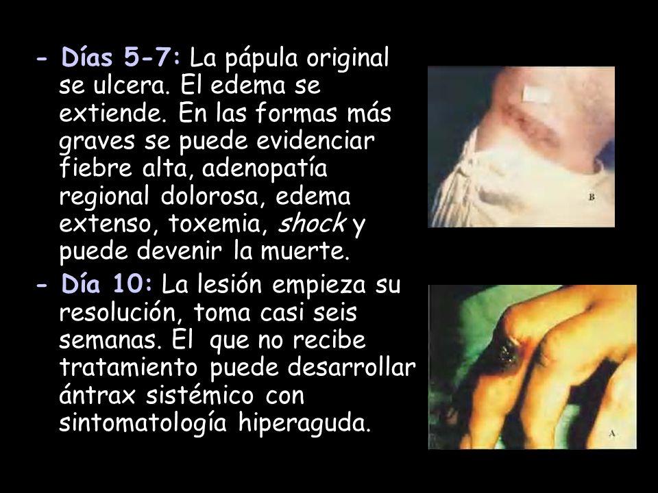 - Días 5-7: La pápula original se ulcera. El edema se extiende