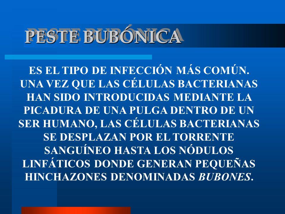 PESTE BUBÓNICA