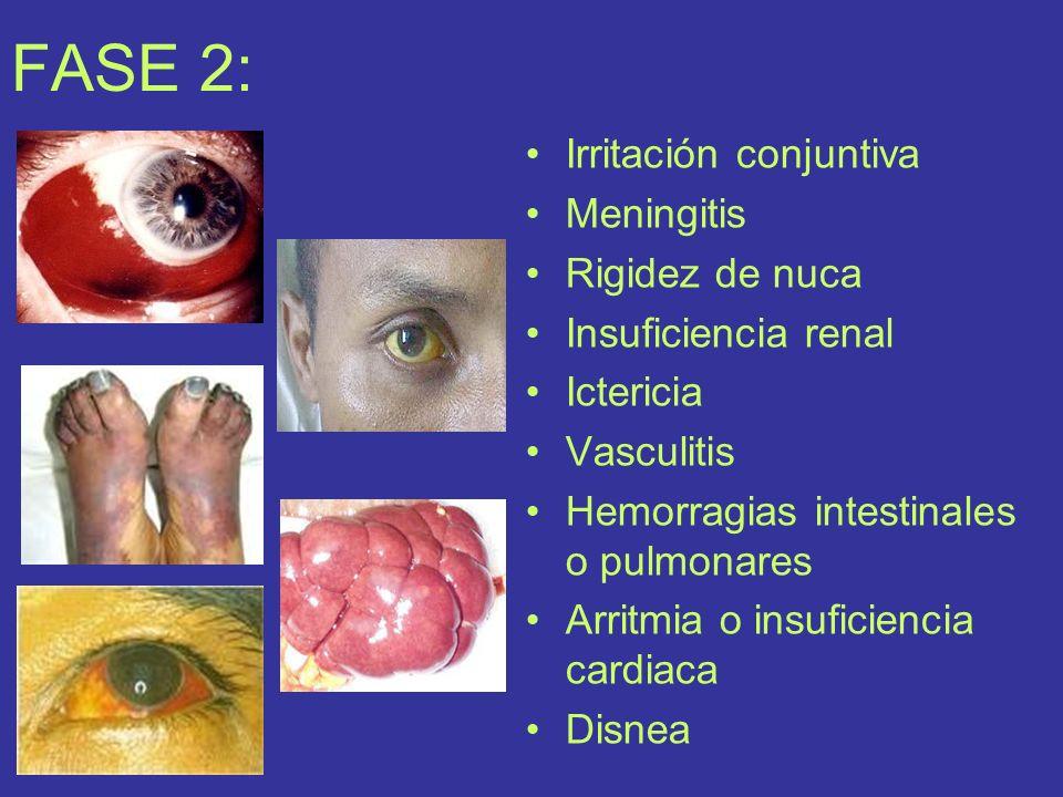 FASE 2: Irritación conjuntiva Meningitis Rigidez de nuca
