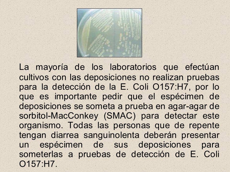 La mayoría de los laboratorios que efectúan cultivos con las deposiciones no realizan pruebas para la detección de la E.