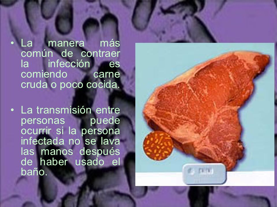 La manera más común de contraer la infección es comiendo carne cruda o poco cocida.