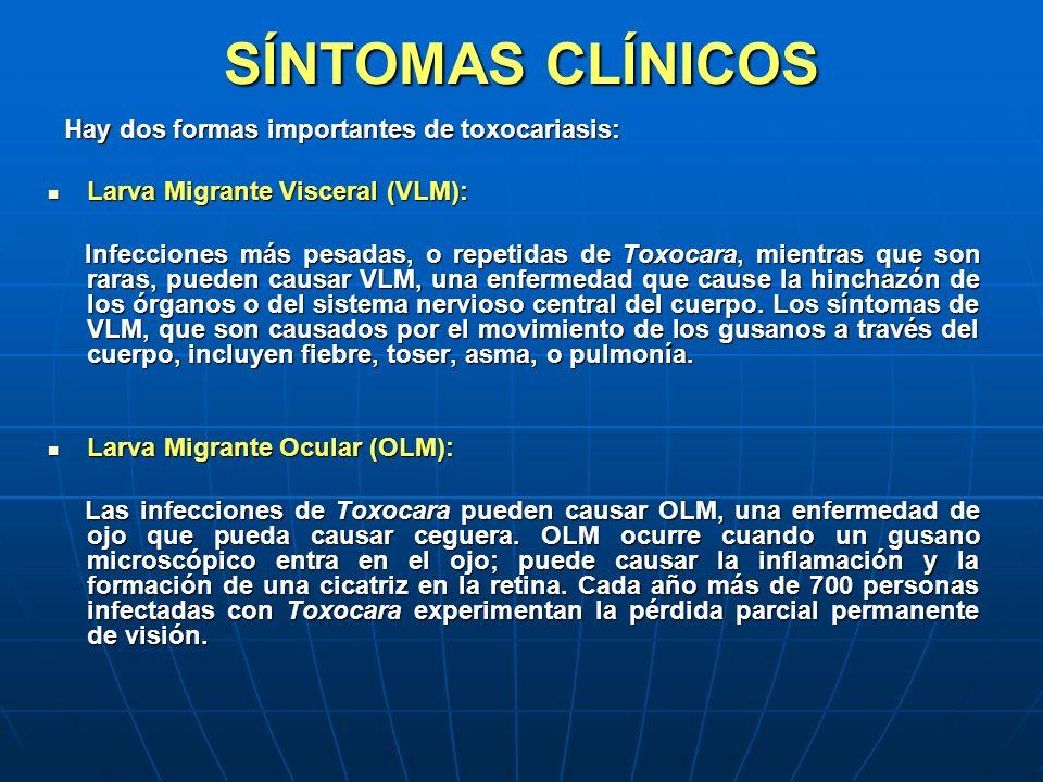 SÍNTOMAS CLÍNICOS Larva Migrante Visceral (VLM):