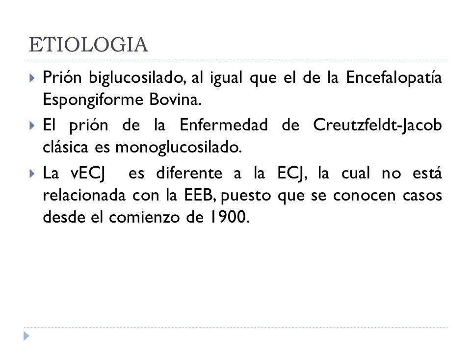 ETIOLOGIA Prión biglucosilado, al igual que el de la Encefalopatía Espongiforme Bovina.