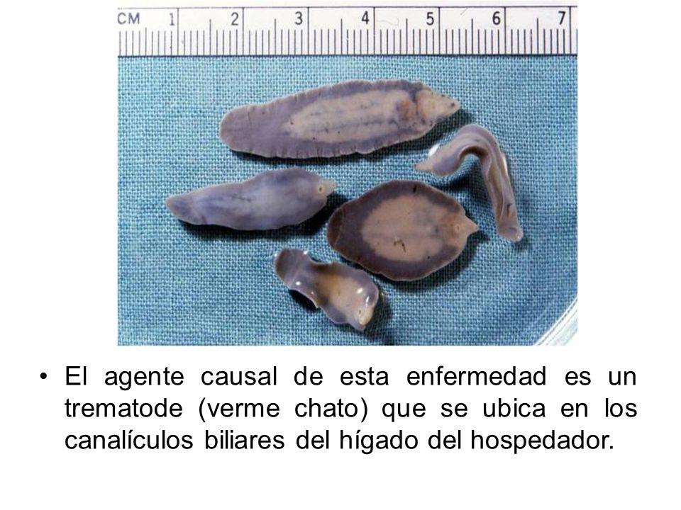 El agente causal de esta enfermedad es un trematode (verme chato) que se ubica en los canalículos biliares del hígado del hospedador.