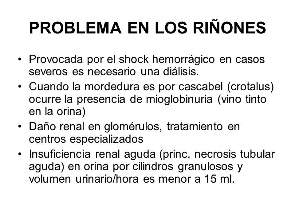 PROBLEMA EN LOS RIÑONES