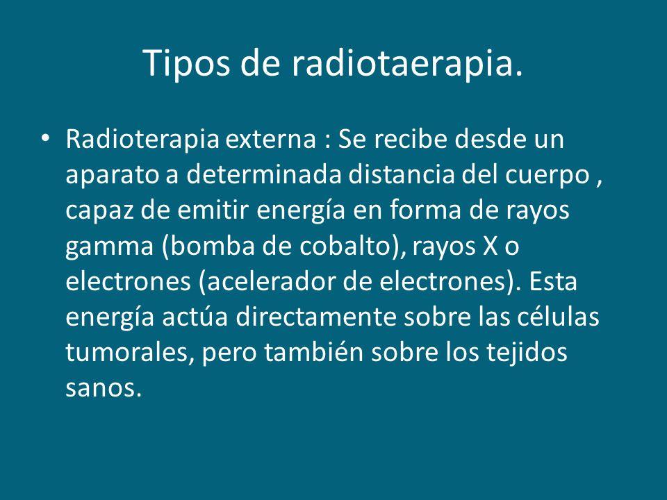 Tipos de radiotaerapia.