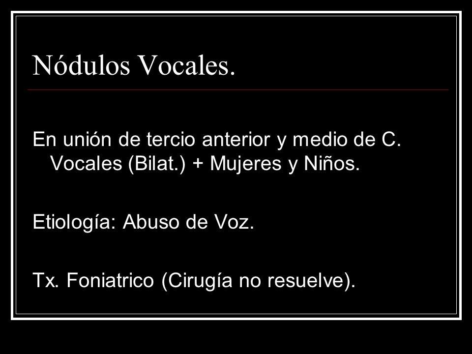 Nódulos Vocales. En unión de tercio anterior y medio de C. Vocales (Bilat.) + Mujeres y Niños. Etiología: Abuso de Voz.