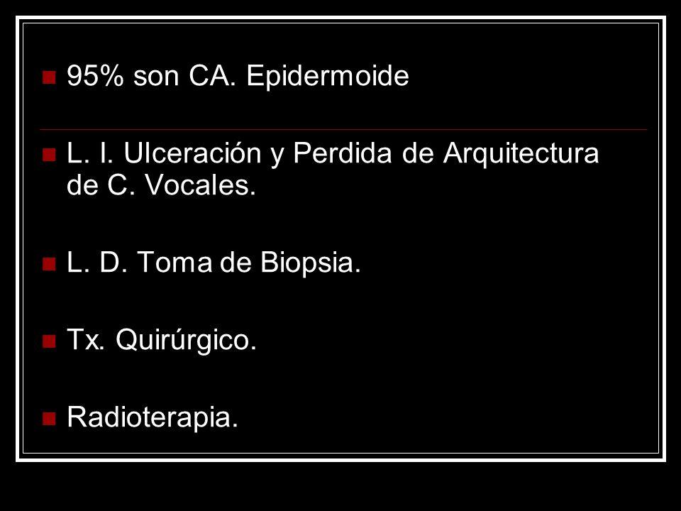 95% son CA. Epidermoide L. I. Ulceración y Perdida de Arquitectura de C. Vocales. L. D. Toma de Biopsia.