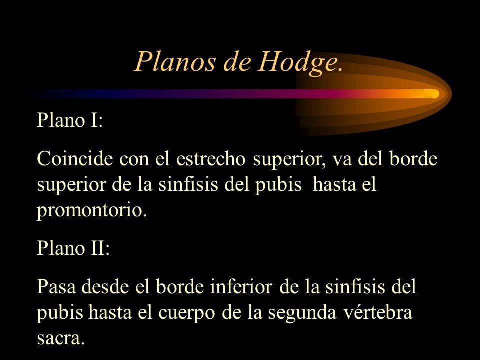 Planos de Hodge. Plano I:
