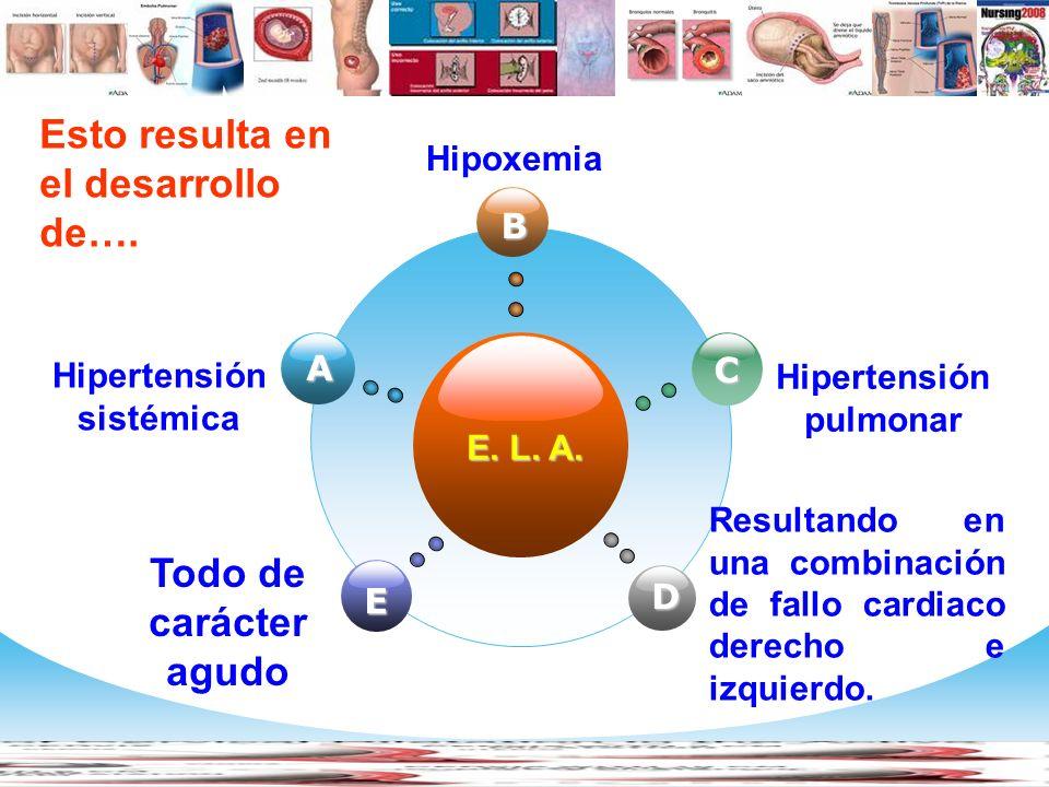 Hipertensión sistémica Hipertensión pulmonar