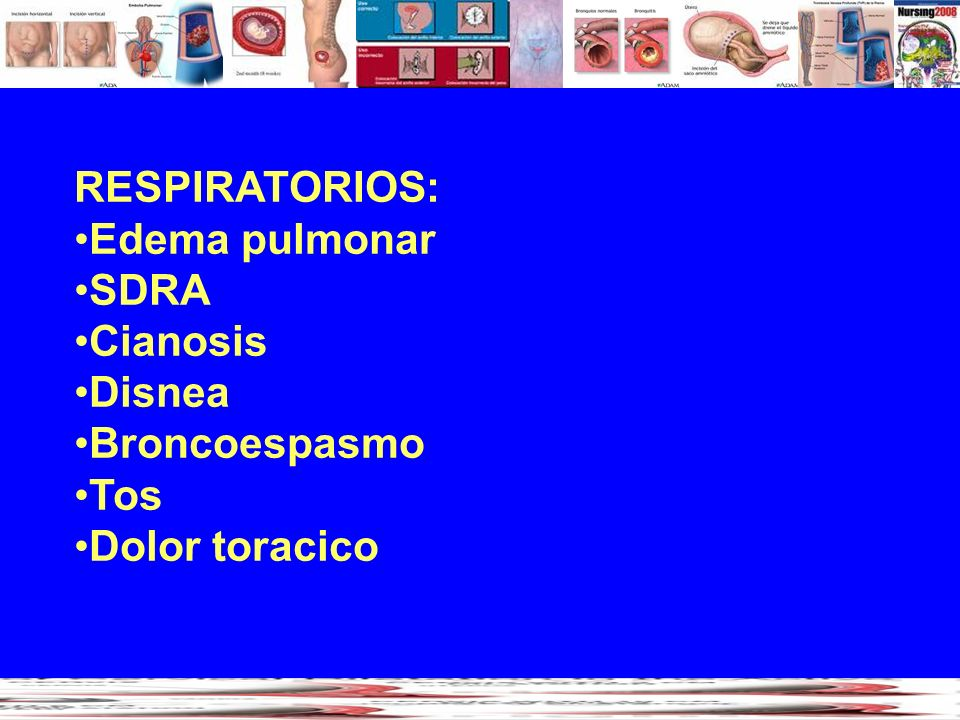RESPIRATORIOS: Edema pulmonar SDRA Cianosis Disnea Broncoespasmo Tos Dolor toracico