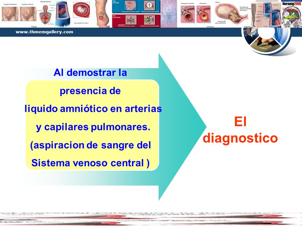 Diagram El diagnostico Al demostrar la presencia de