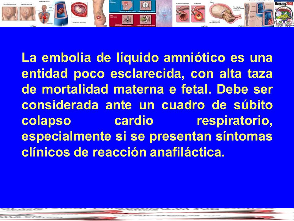 La embolia de líquido amniótico es una entidad poco esclarecida, con alta taza de mortalidad materna e fetal.
