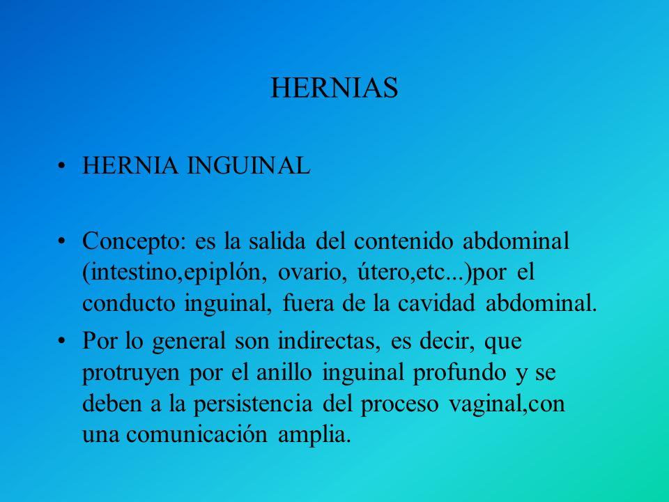 HERNIAS HERNIA INGUINAL