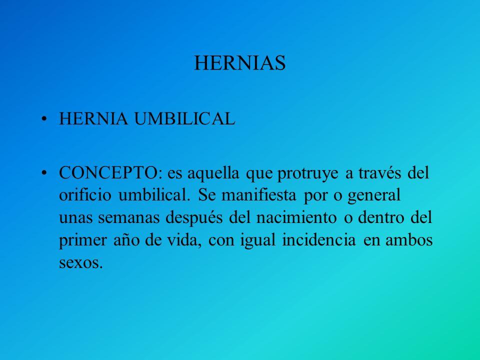 HERNIAS HERNIA UMBILICAL