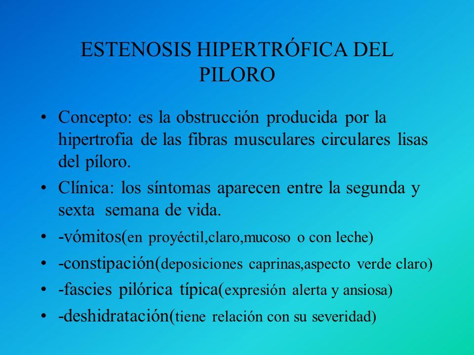 ESTENOSIS HIPERTRÓFICA DEL PILORO