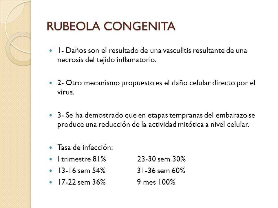 RUBEOLA CONGENITA 1- Daños son el resultado de una vasculitis resultante de una necrosis del tejido inflamatorio.