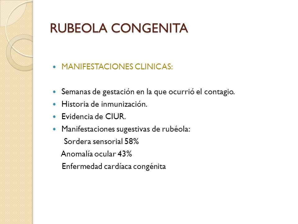 RUBEOLA CONGENITA MANIFESTACIONES CLINICAS: