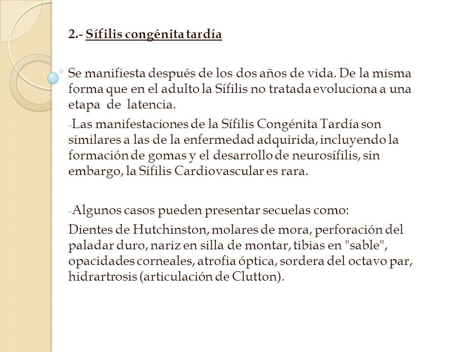 2.- Sífilis congénita tardía