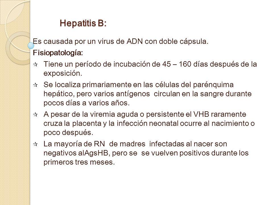 Hepatitis B: Es causada por un virus de ADN con doble cápsula.