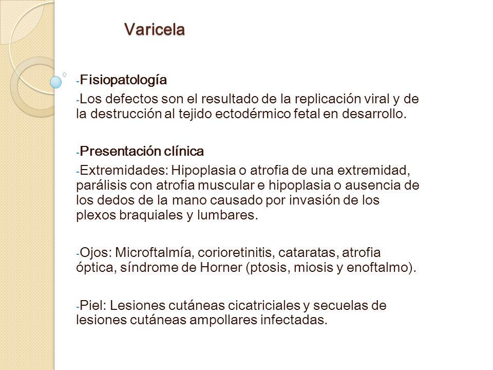 Varicela Fisiopatología