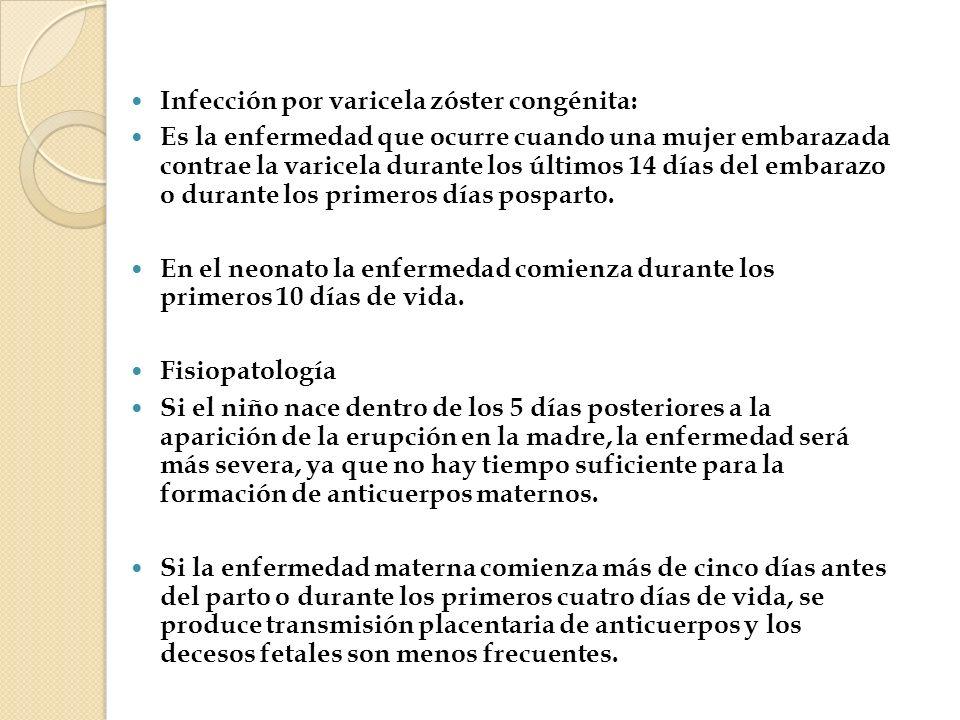 Infección por varicela zóster congénita: